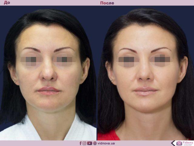 Пластика носа - ринопластика 1 1 1 640x480