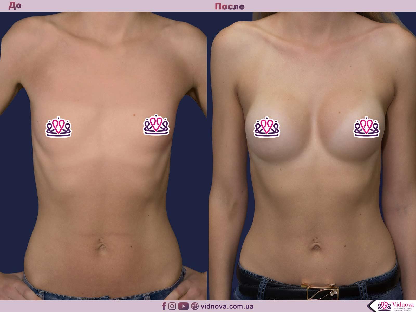 Пластика груди: результаты до и после - Пример №14-0 - Светлана Работенко