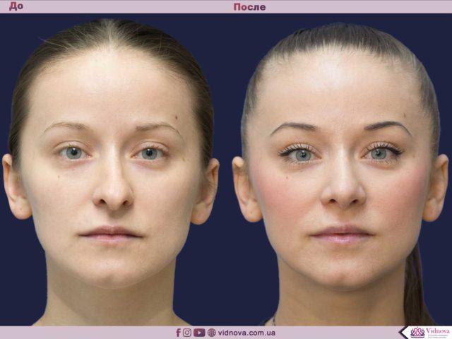 Пластика носа - ринопластика 1 10 640x480