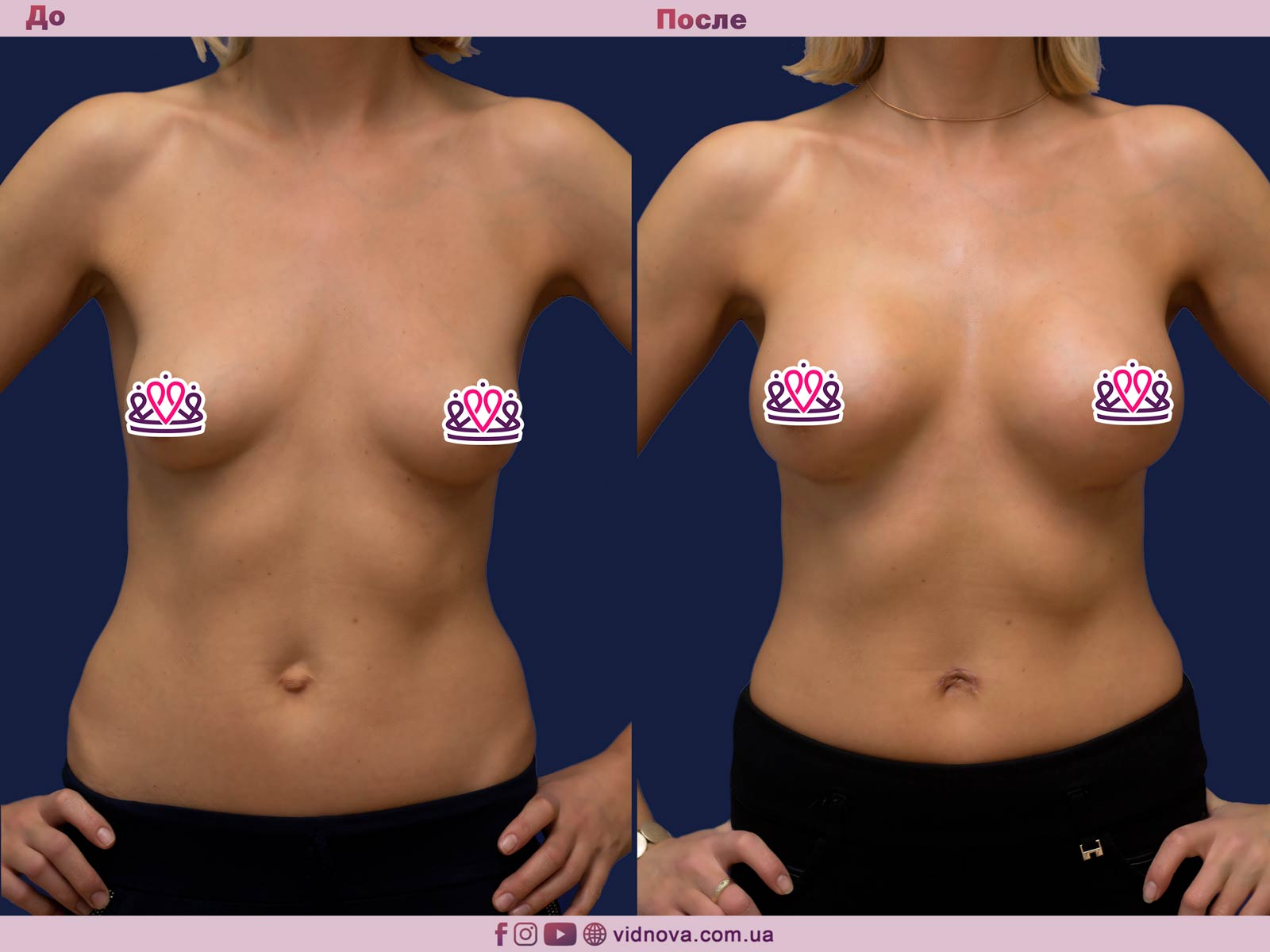 Пластика груди: результаты до и после - Пример №17-0 - Светлана Работенко