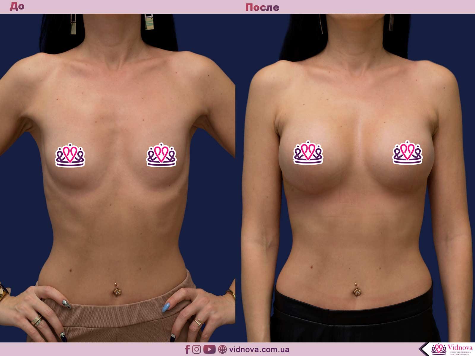 Пластика груди: результаты до и после - Пример №16-0 - Светлана Работенко