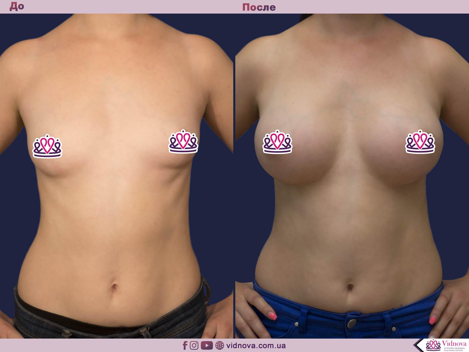 Пластика груди: результаты до и после - Пример №18-0 - Светлана Работенко