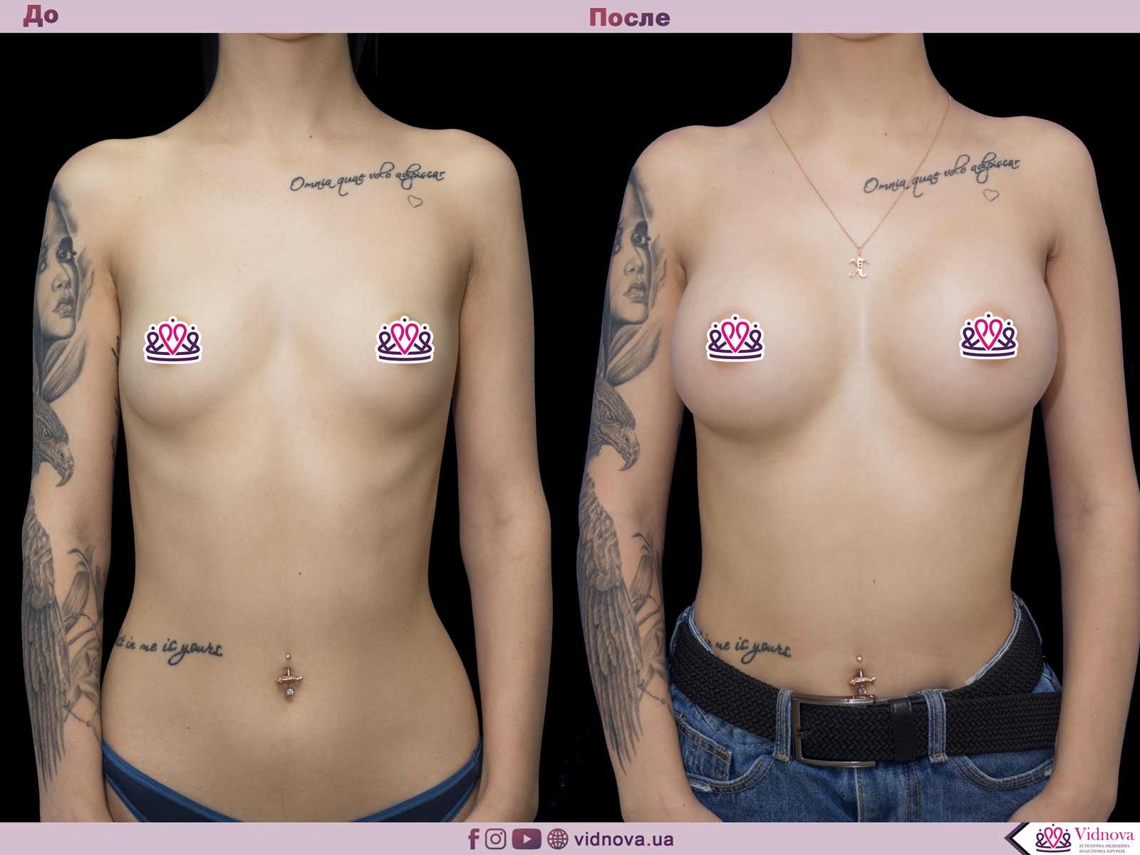 Пластика груди: результаты до и после - Пример №46-0 - Светлана Работенко