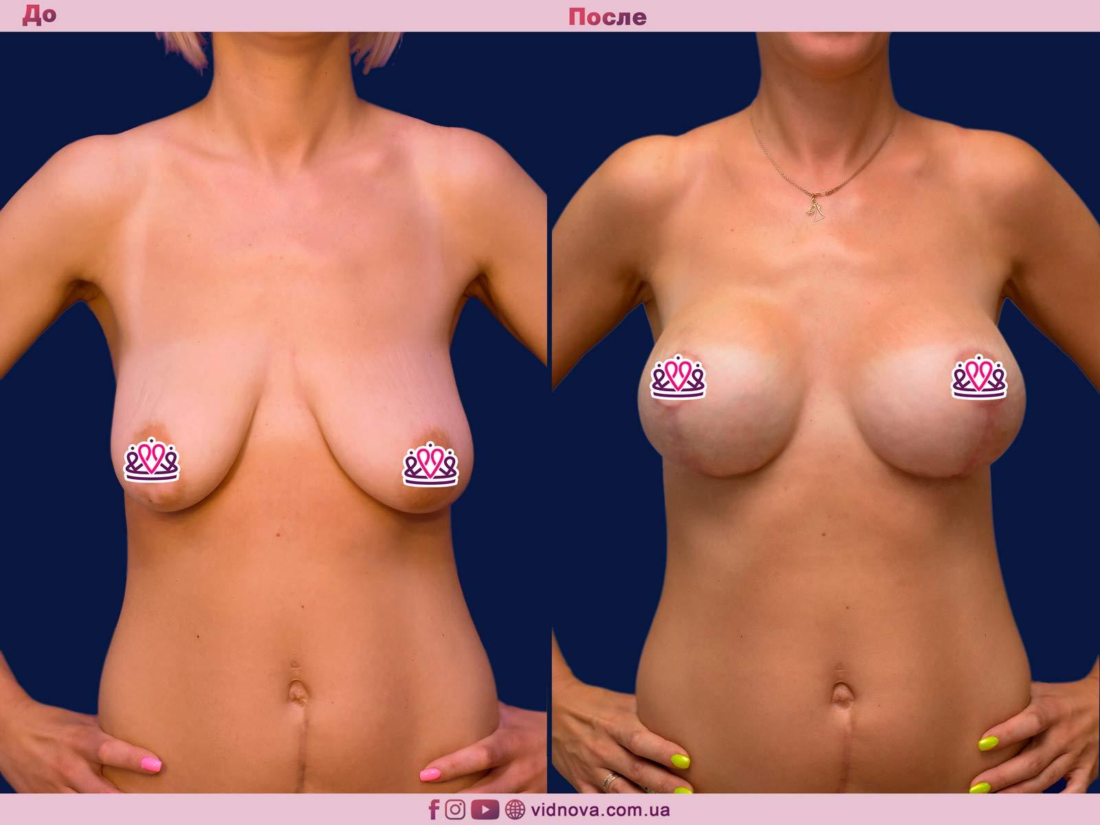 Пластика груди: результаты до и после - Пример №21-0 - Светлана Работенко