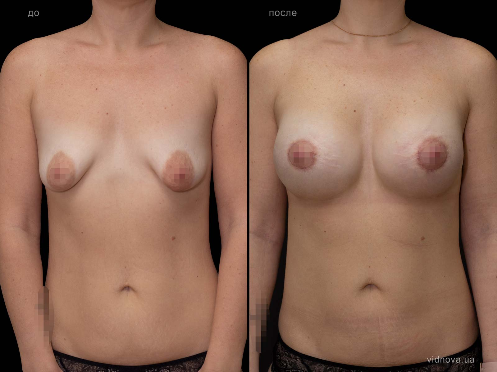 Пластика груди: результаты до и после - Пример №78-0 - Светлана Работенко