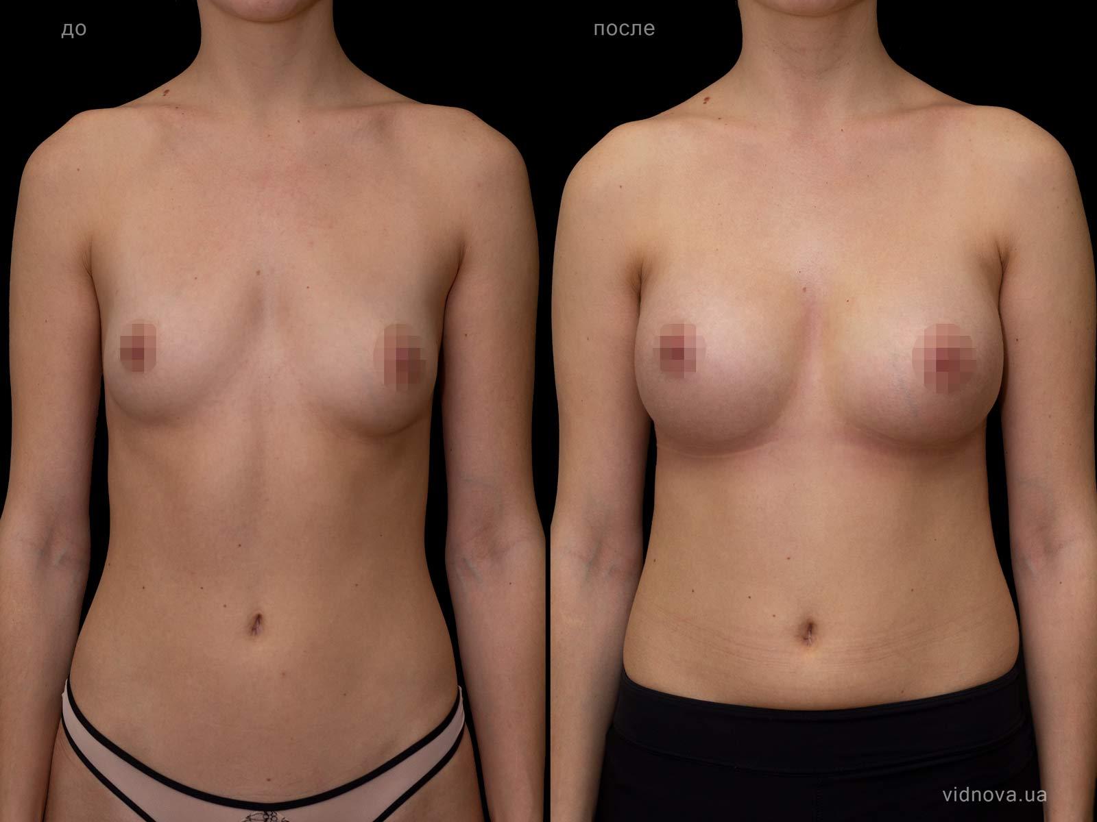 Пластика груди: результаты до и после - Пример №74-0 - Светлана Работенко