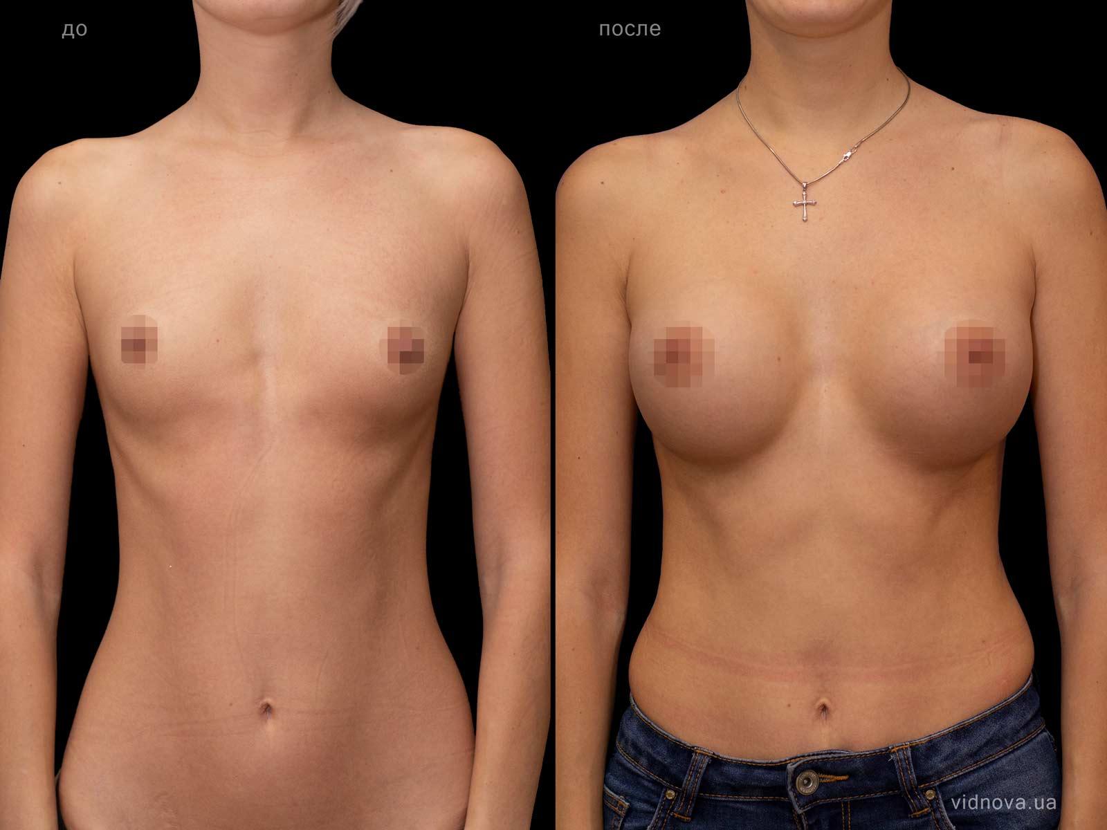 Пластика груди: результаты до и после - Пример №75-0 - Светлана Работенко