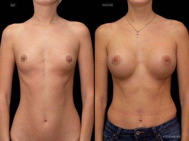 Увеличение груди 1 2019 02 18T102013.394 640x480