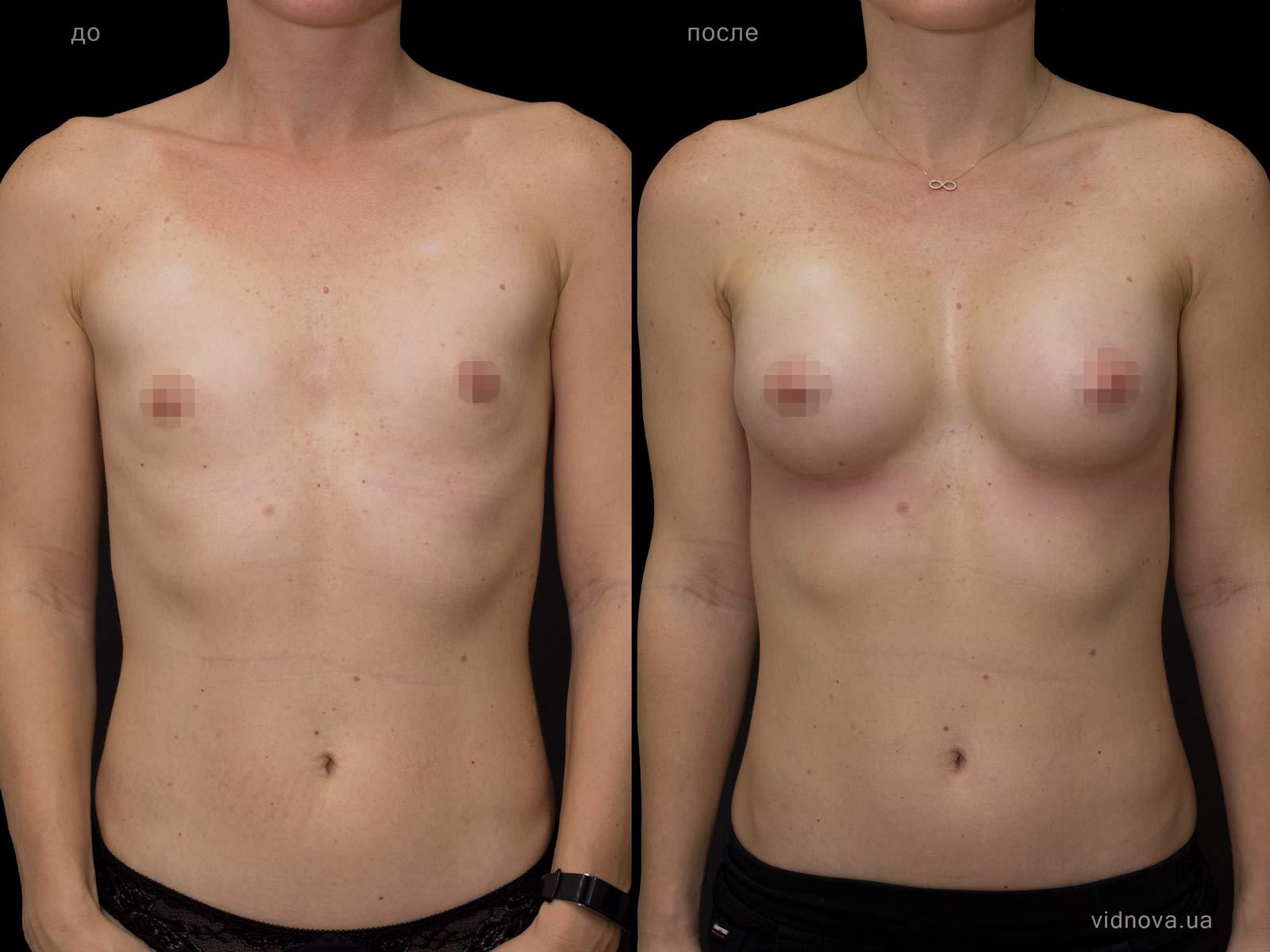 Пластика груди: результаты до и после - Пример №70-0 - Светлана Работенко