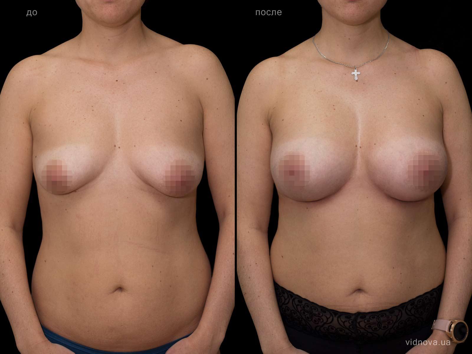 Пластика груди: результаты до и после - Пример №68-0 - Светлана Работенко