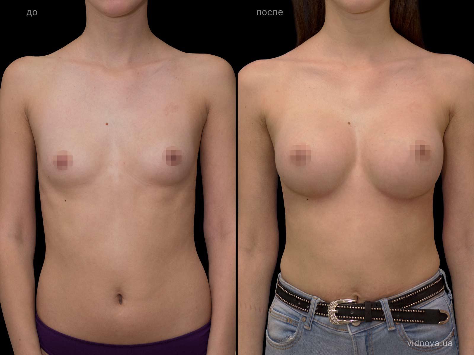 Пластика груди: результаты до и после - Пример №73-0 - Светлана Работенко