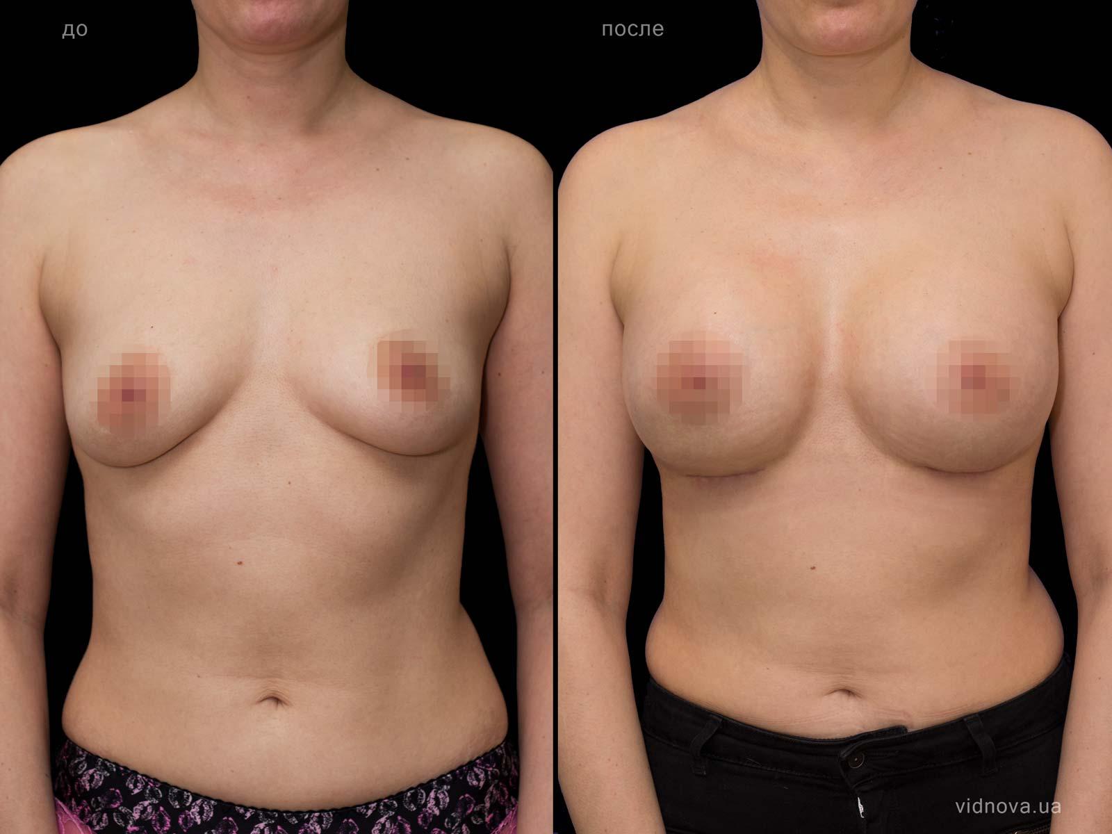 Пластика груди: результаты до и после - Пример №69-0 - Светлана Работенко