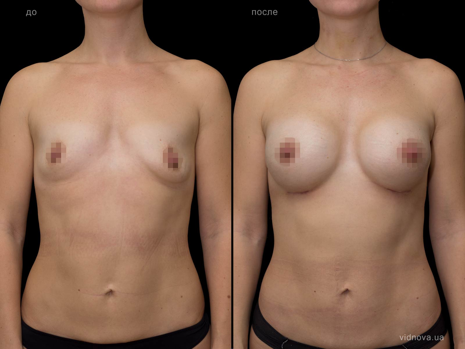 Пластика груди: результаты до и после - Пример №71-0 - Светлана Работенко