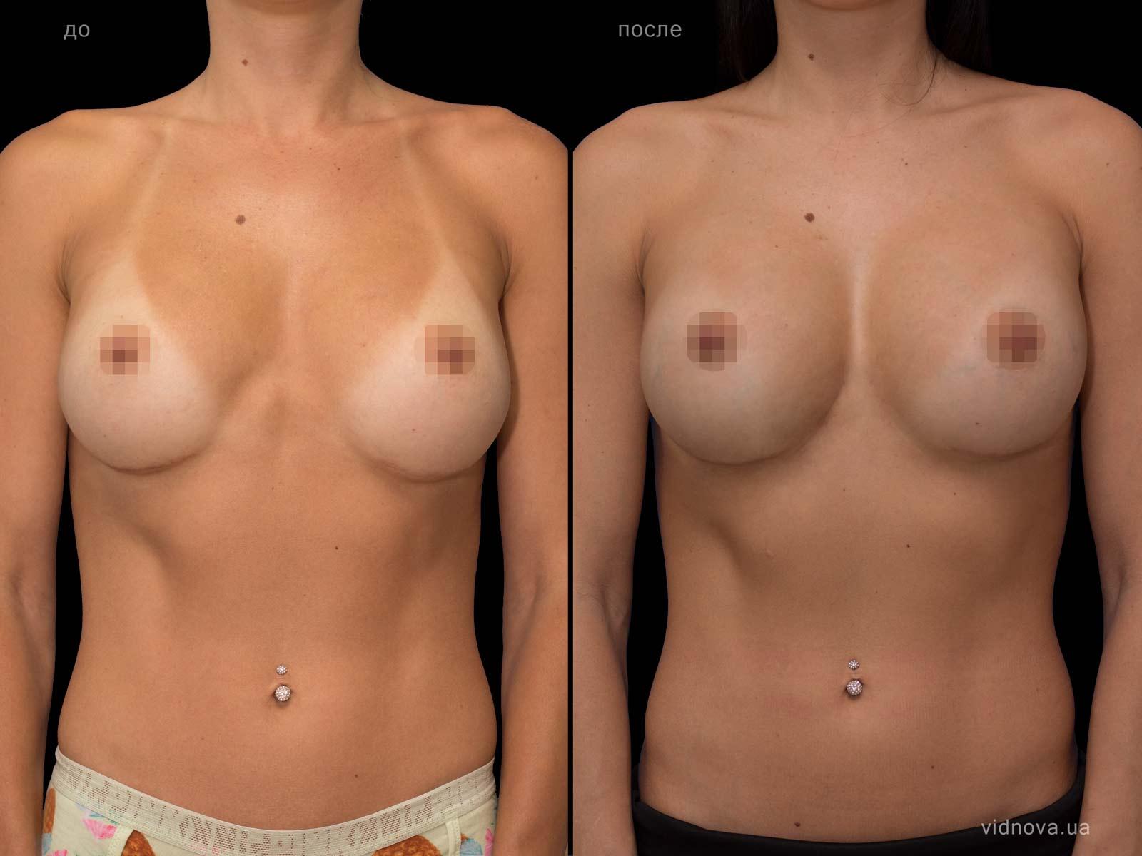 Пластика груди: результаты до и после - Пример №72-0 - Светлана Работенко