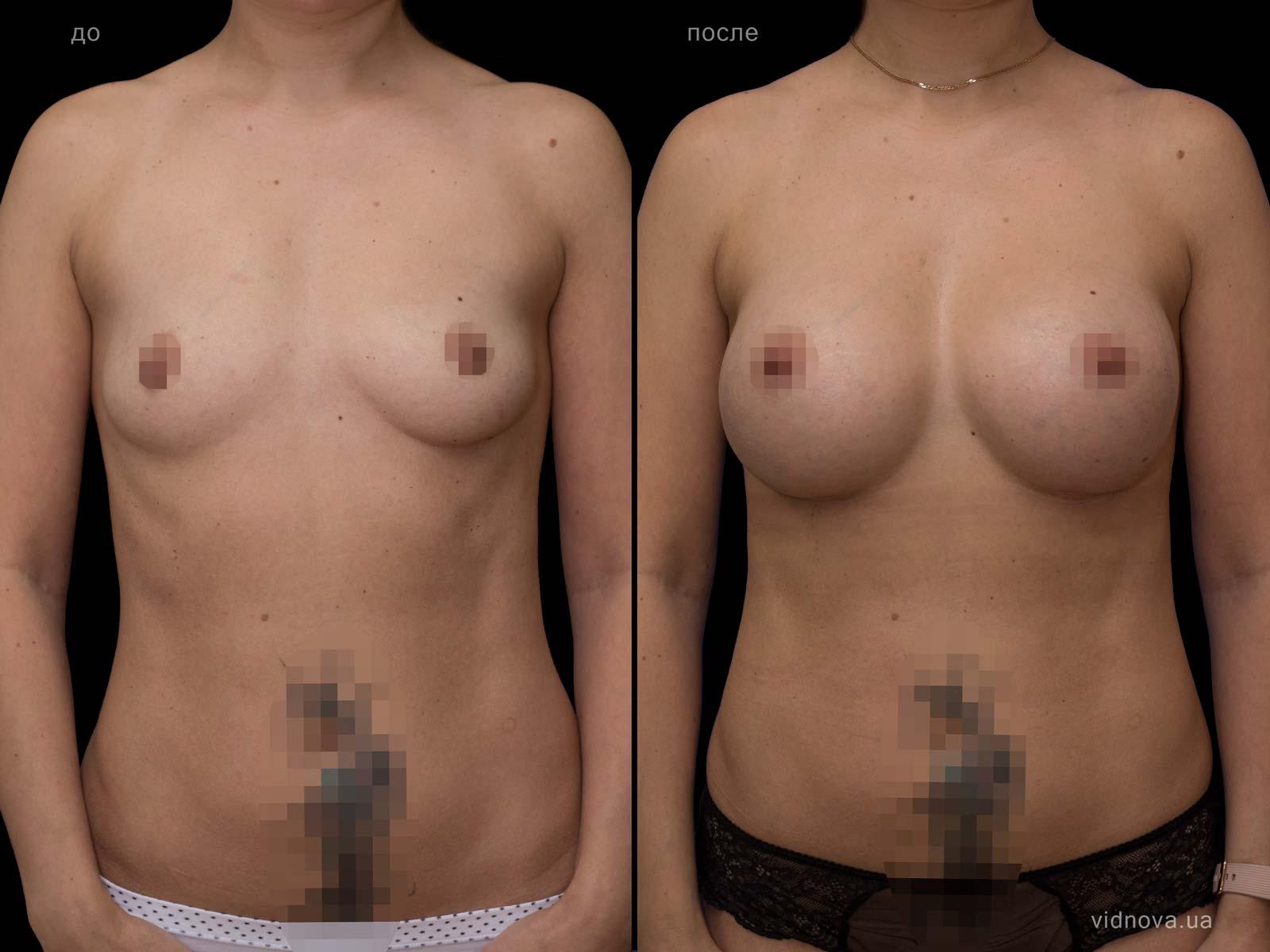 Пластика груди: результаты до и после - Пример №66-0 - Светлана Работенко