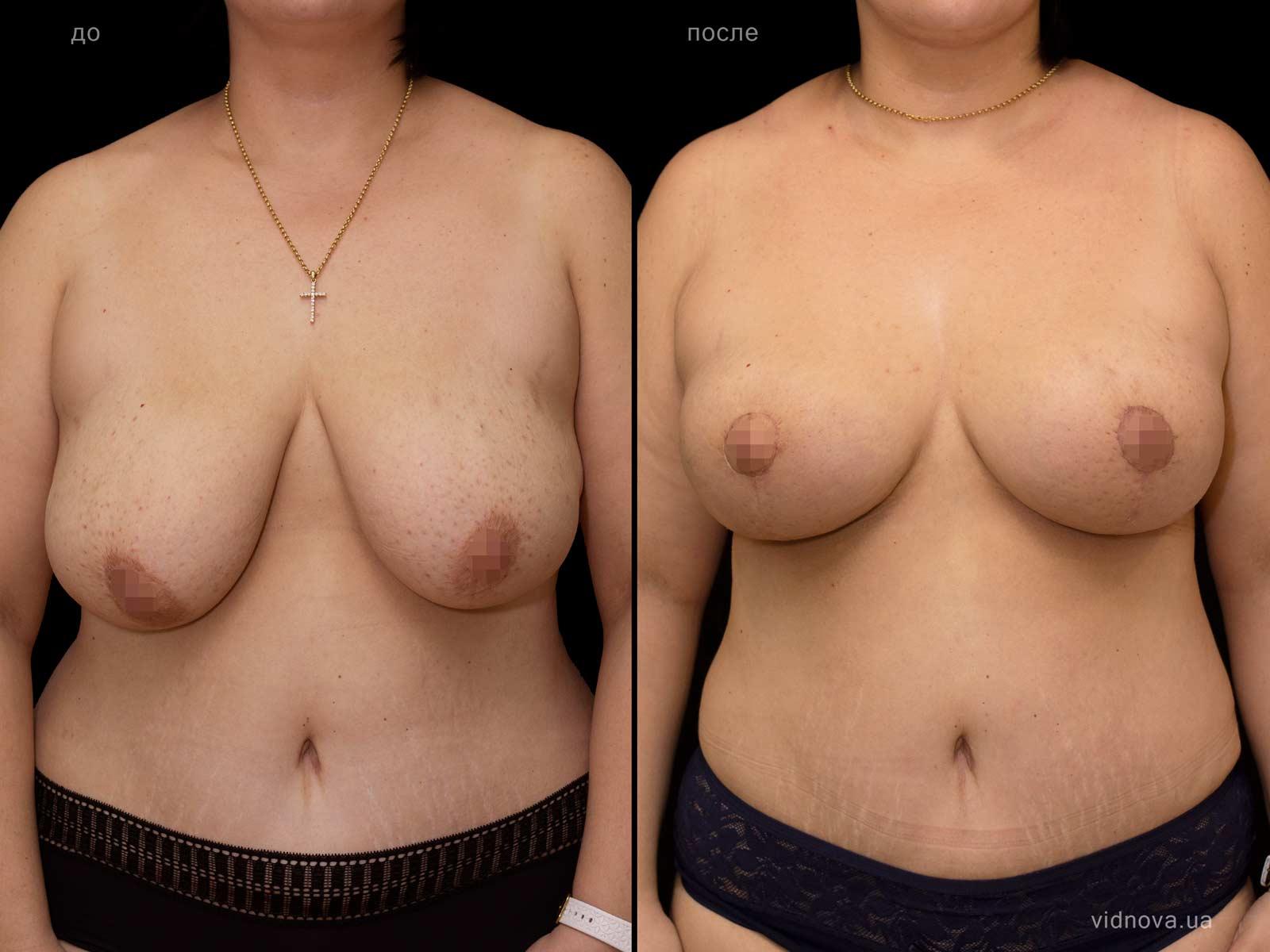 Пластика груди: результаты до и после - Пример №77-0 - Светлана Работенко