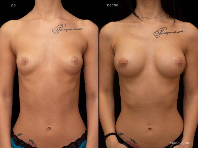 Увеличение груди 1 2019 03 22T090053.630 640x480