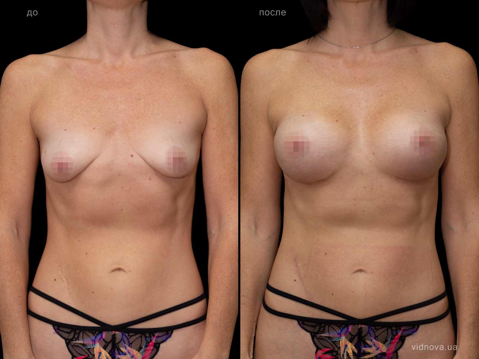 Пластика груди: результаты до и после - Пример №67-0 - Светлана Работенко