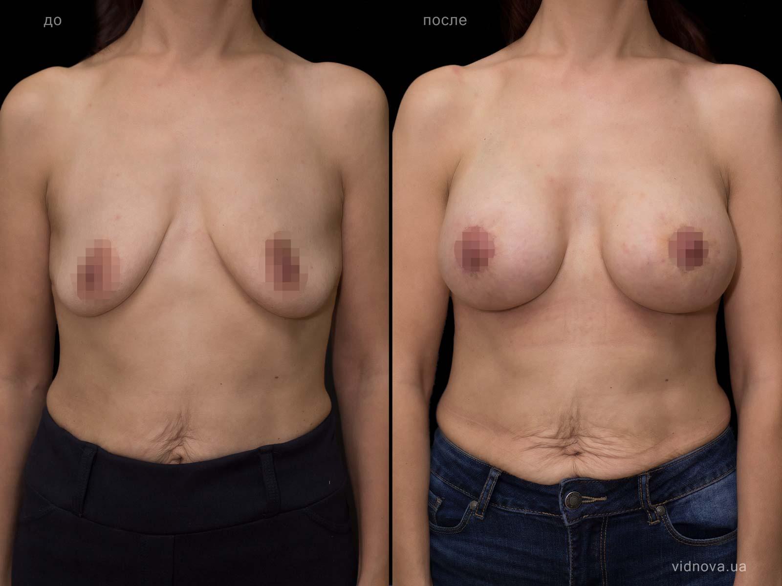 Пластика груди: результаты до и после - Пример №80-0 - Светлана Работенко