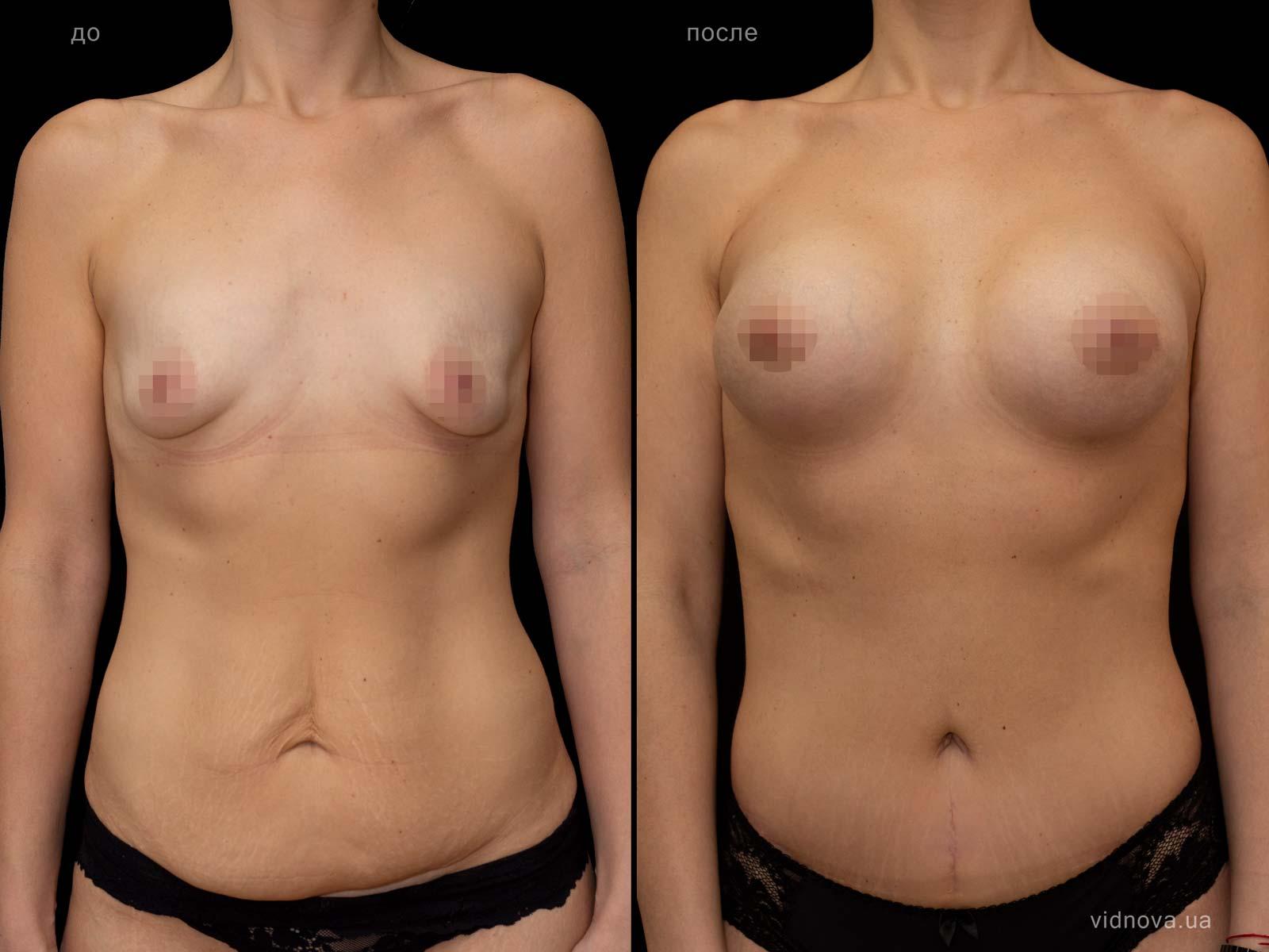 Пластика груди: результаты до и после - Пример №97-1 - Светлана Работенко