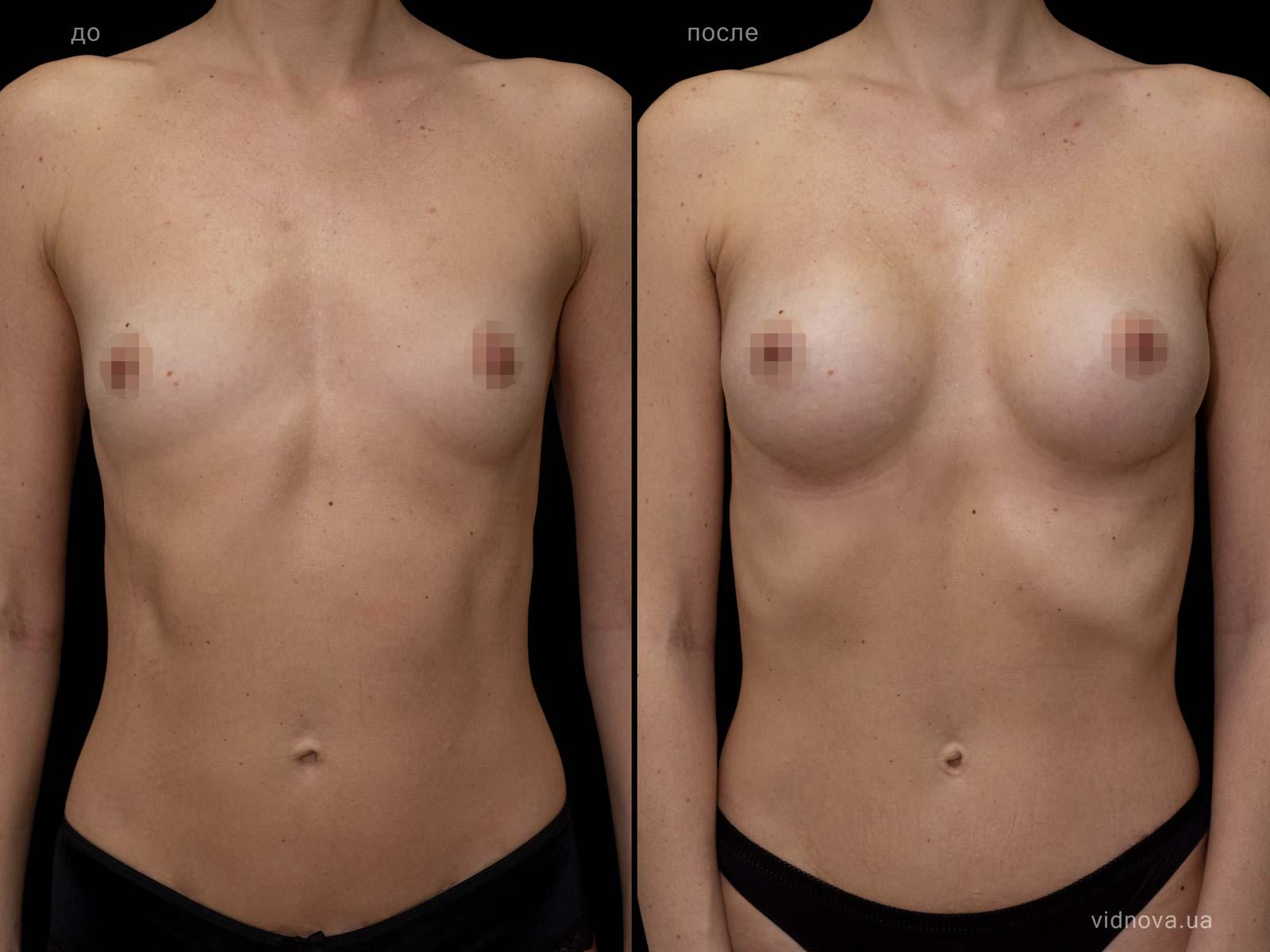Пластика груди: результаты до и после - Пример №79-0 - Светлана Работенко