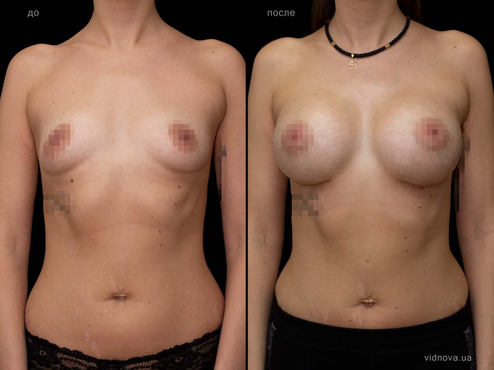 Пластика груди: результаты до и после - Пример №92-0 - Светлана Работенко