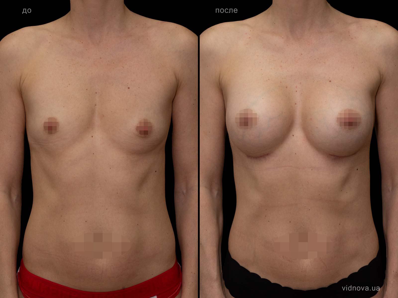 Пластика груди: результаты до и после - Пример №81-0 - Светлана Работенко