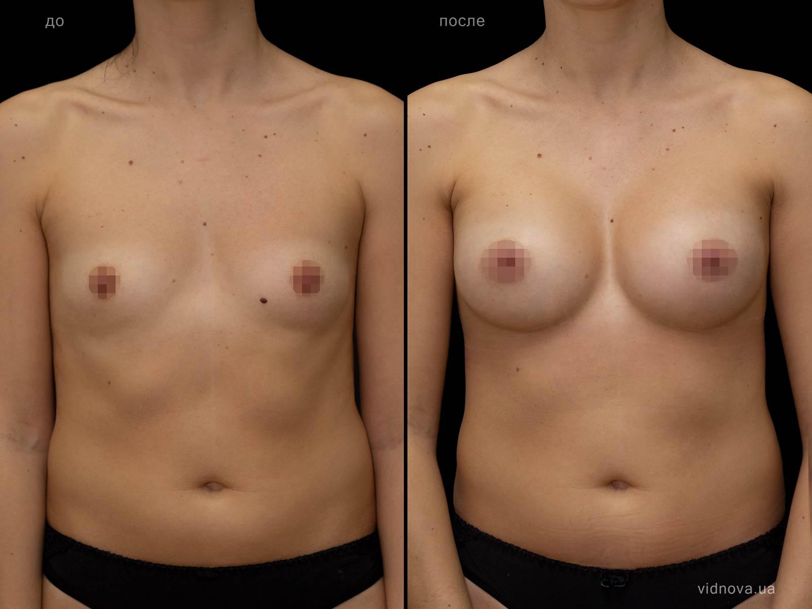 Пластика груди: результаты до и после - Пример №82-0 - Светлана Работенко
