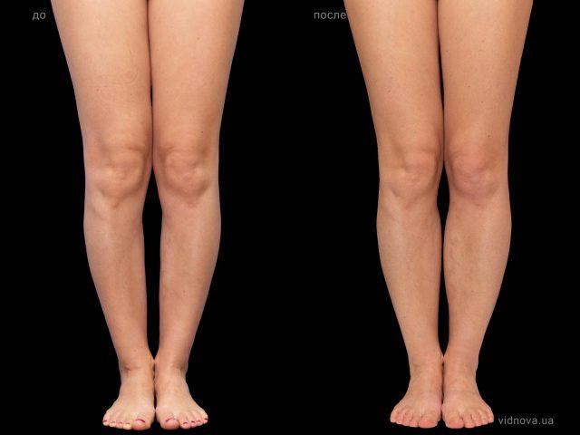 Пластика ног (круропластика) в Запорожье 1 2019 05 15T121713.827 640x480