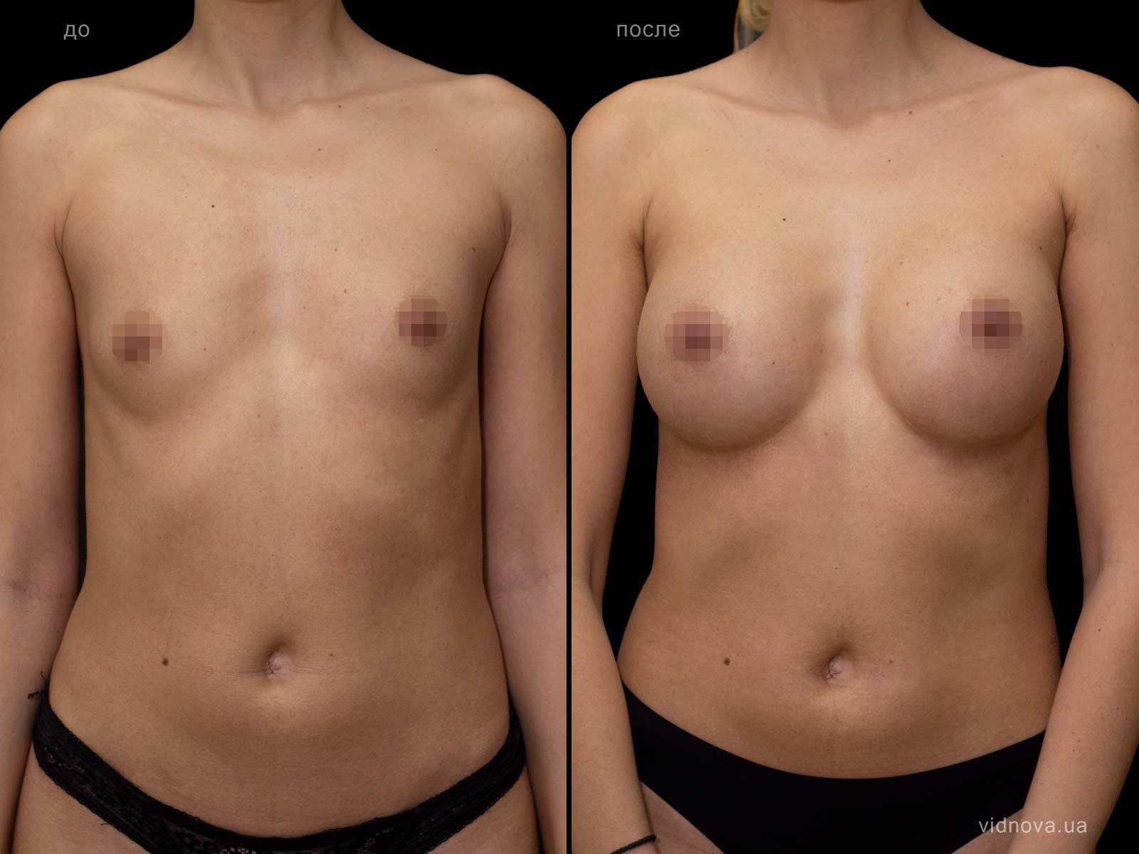 Пластика груди: результаты до и после - Пример №91-0 - Светлана Работенко