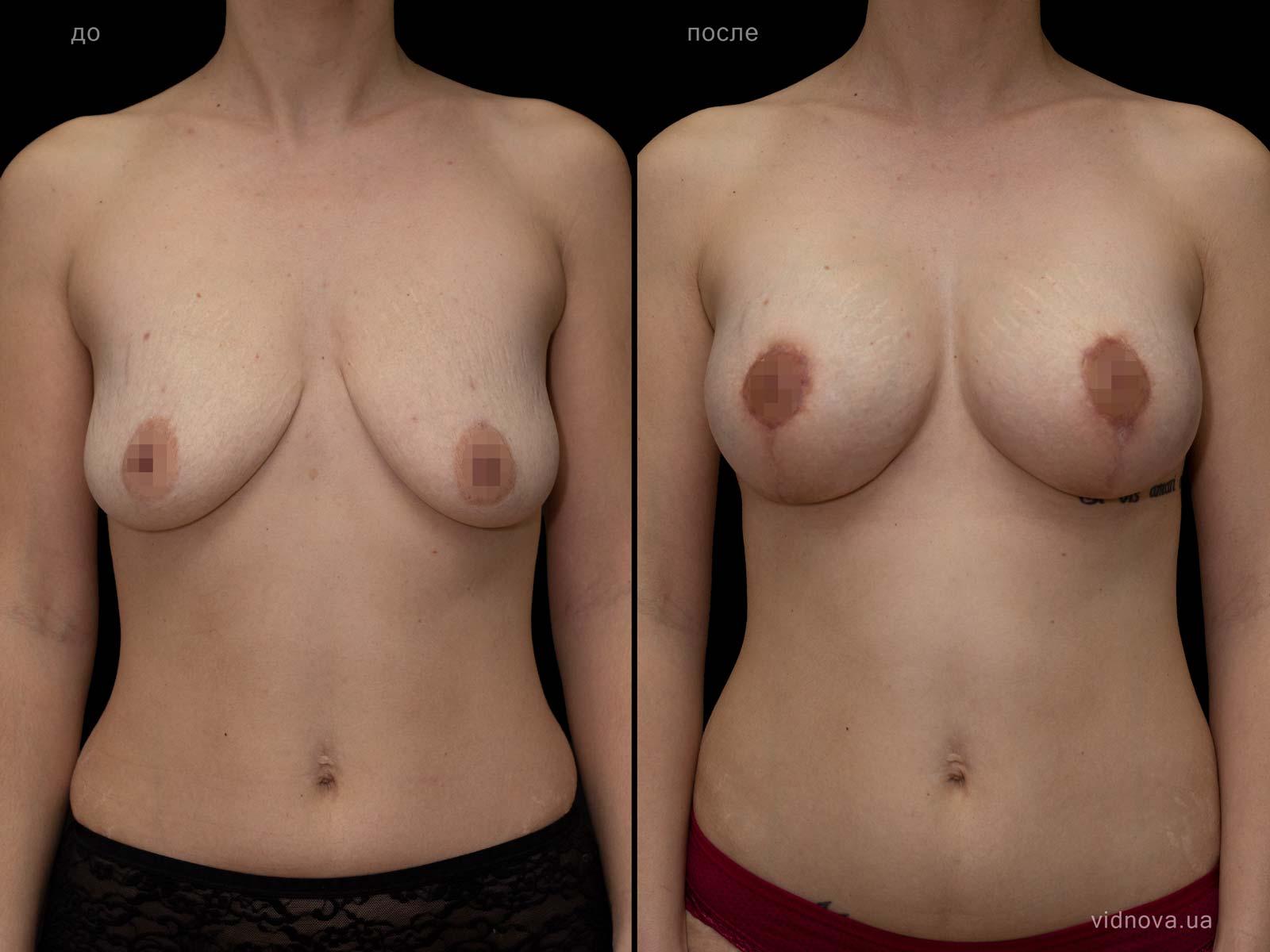 Пластика груди: результаты до и после - Пример №84-0 - Светлана Работенко