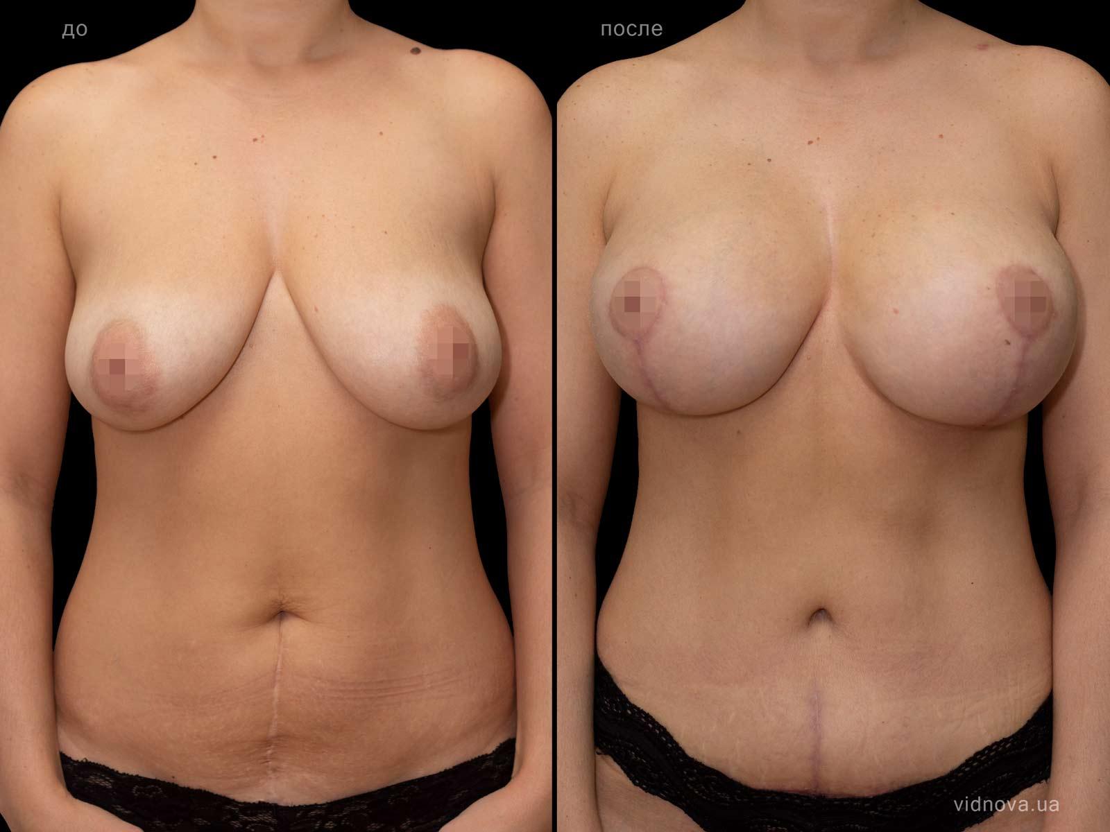 Пластика груди: результаты до и после - Пример №88-1 - Светлана Работенко