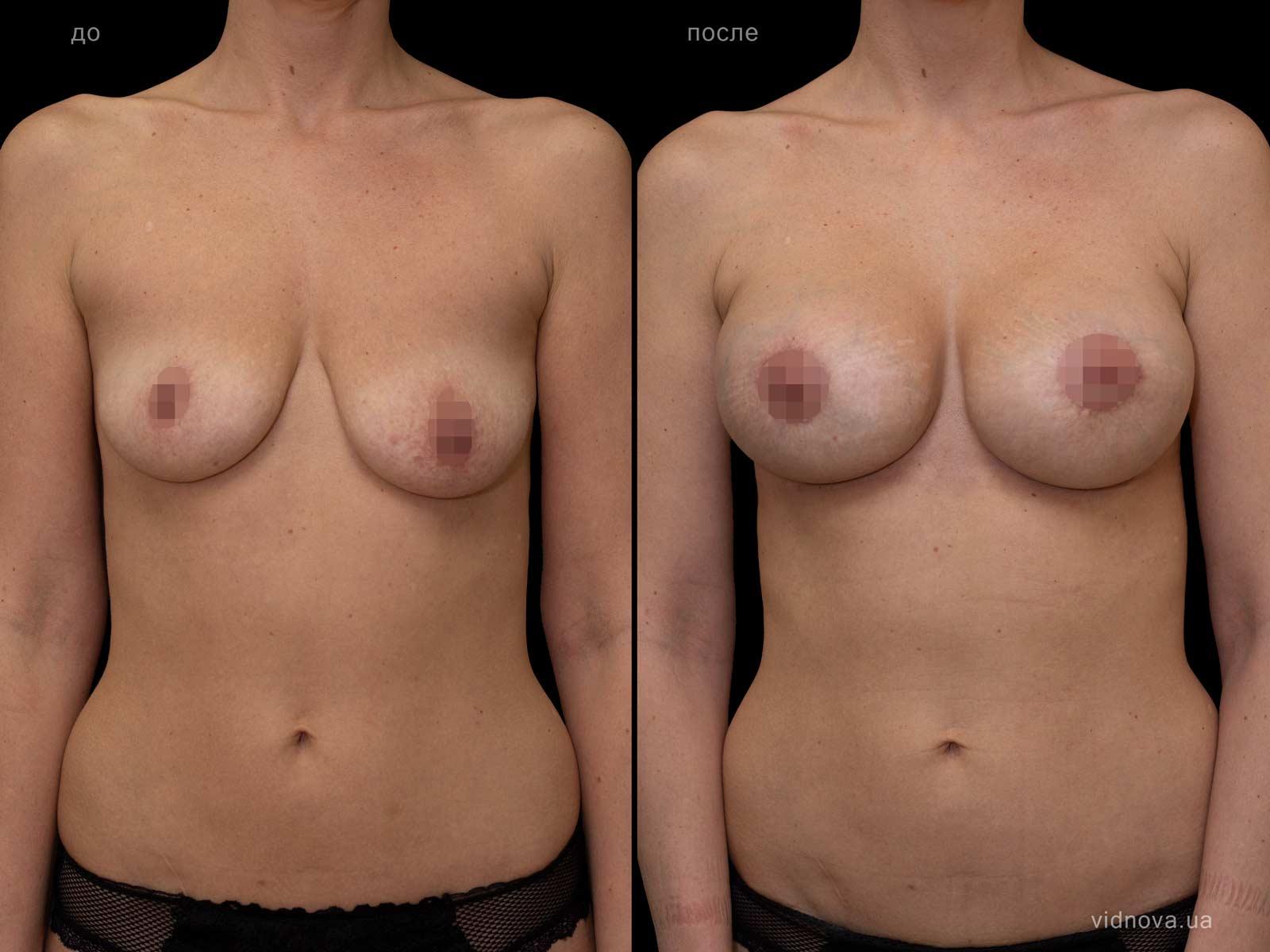 Пластика груди: результаты до и после - Пример №86-0 - Светлана Работенко
