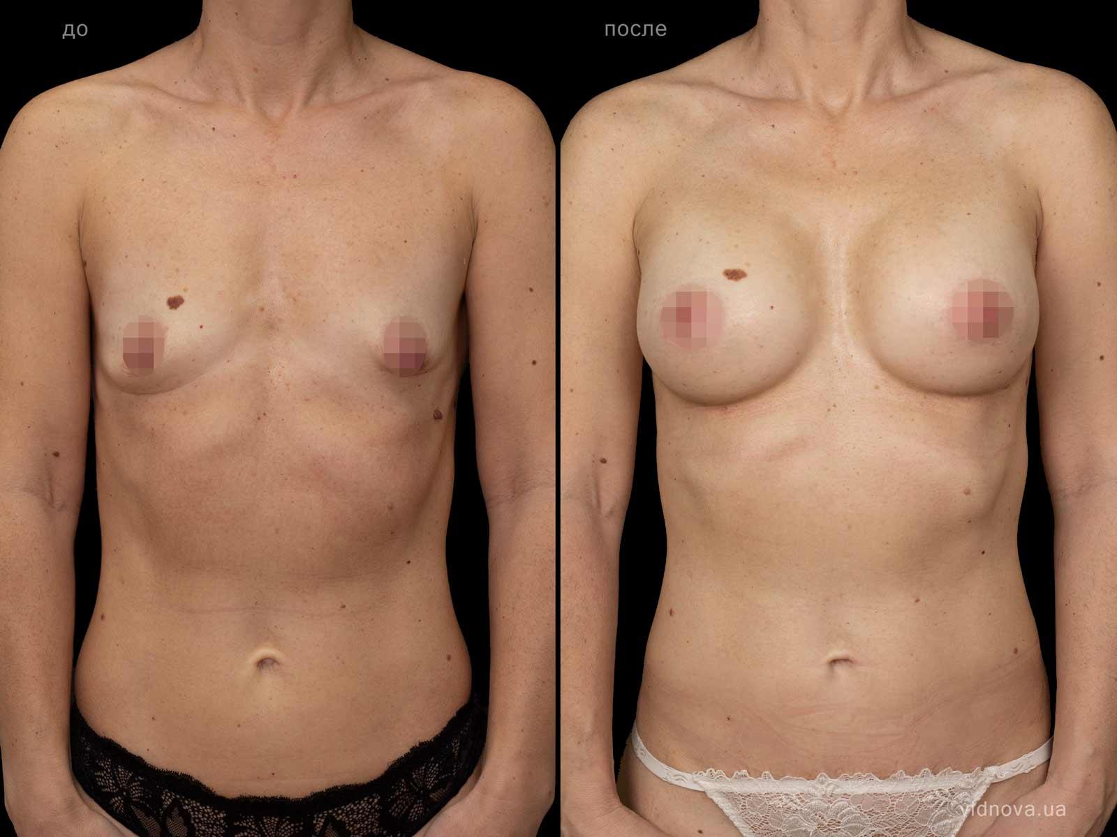 Пластика груди: результаты до и после - Пример №83-0 - Светлана Работенко