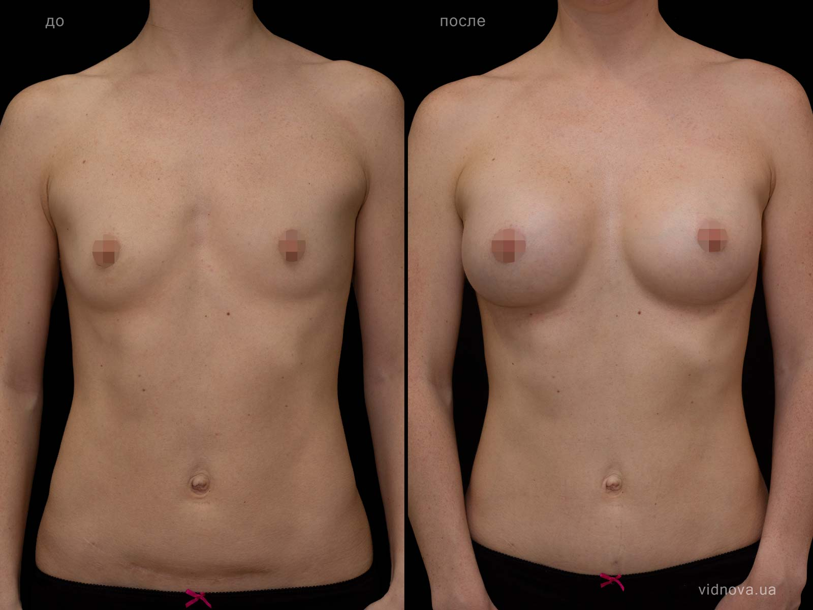 Пластика груди: результаты до и после - Пример №89-0 - Светлана Работенко