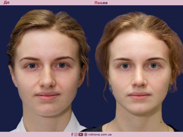 Пластика носа - ринопластика 1 23 640x480