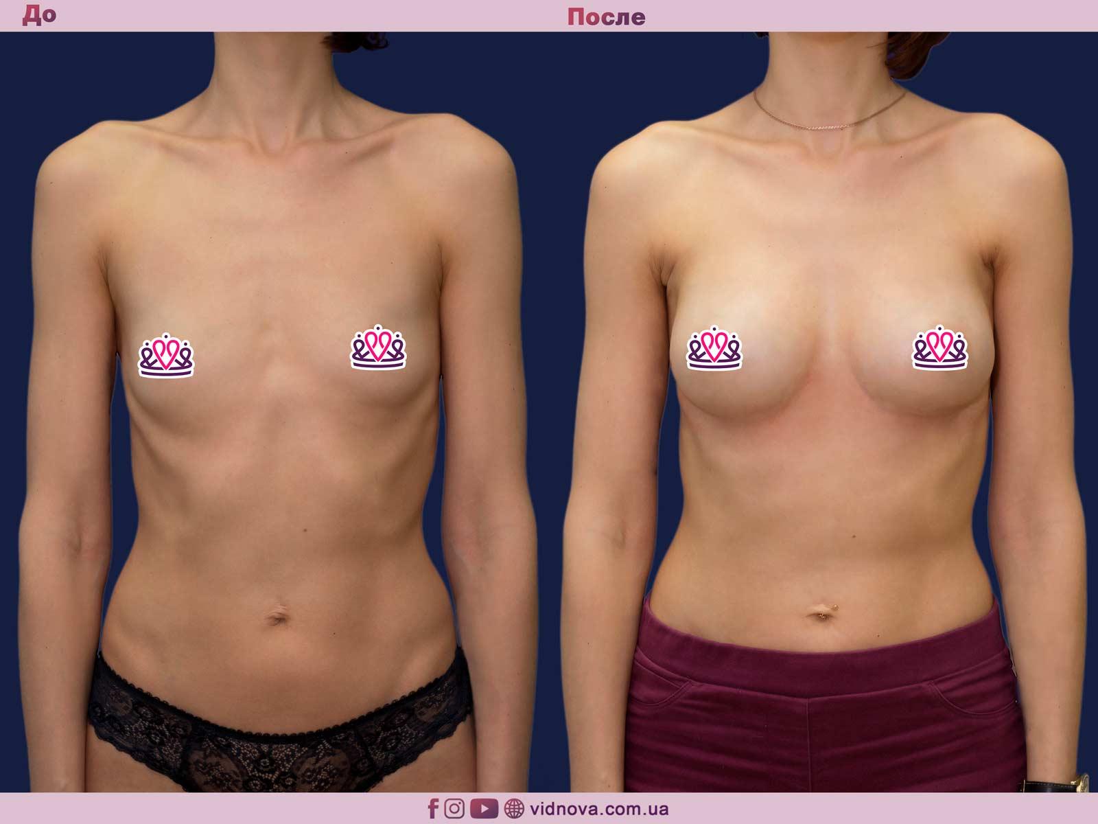Пластика груди: результаты до и после - Пример №22-0 - Светлана Работенко