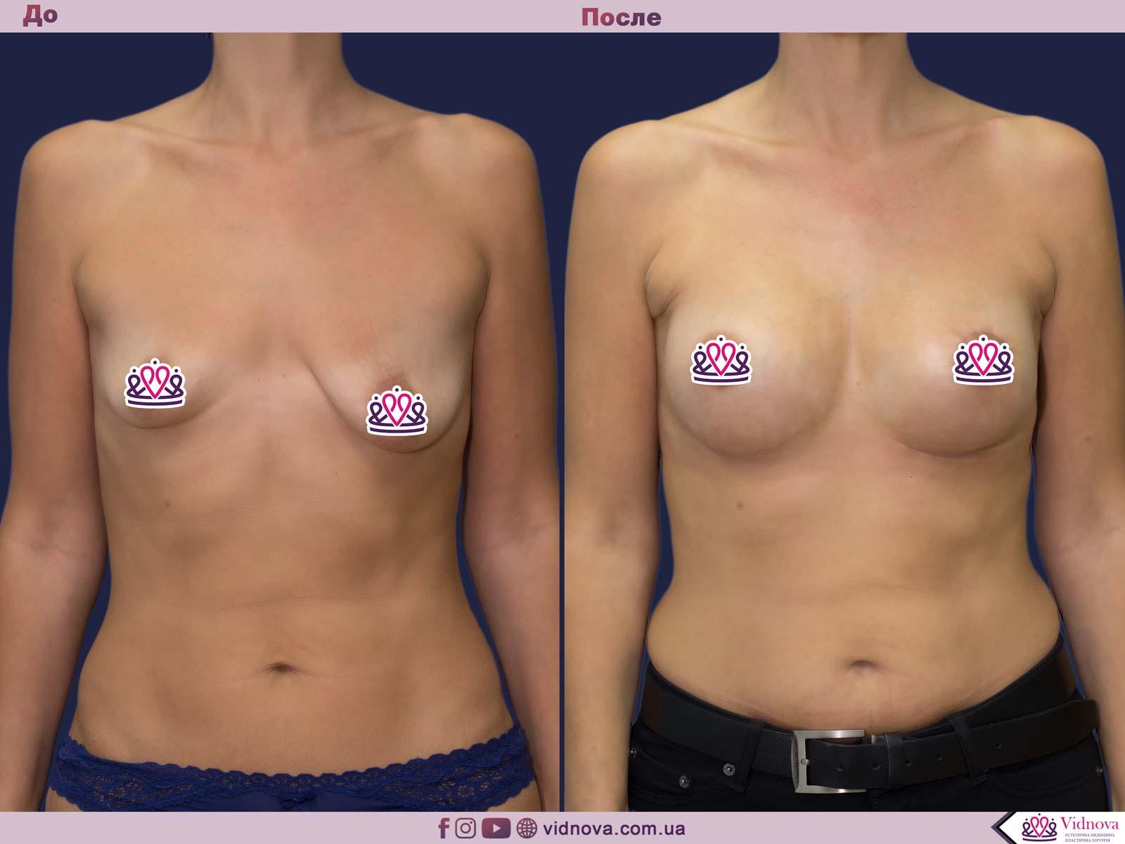 Пластика груди: результаты до и после - Пример №25-0 - Светлана Работенко