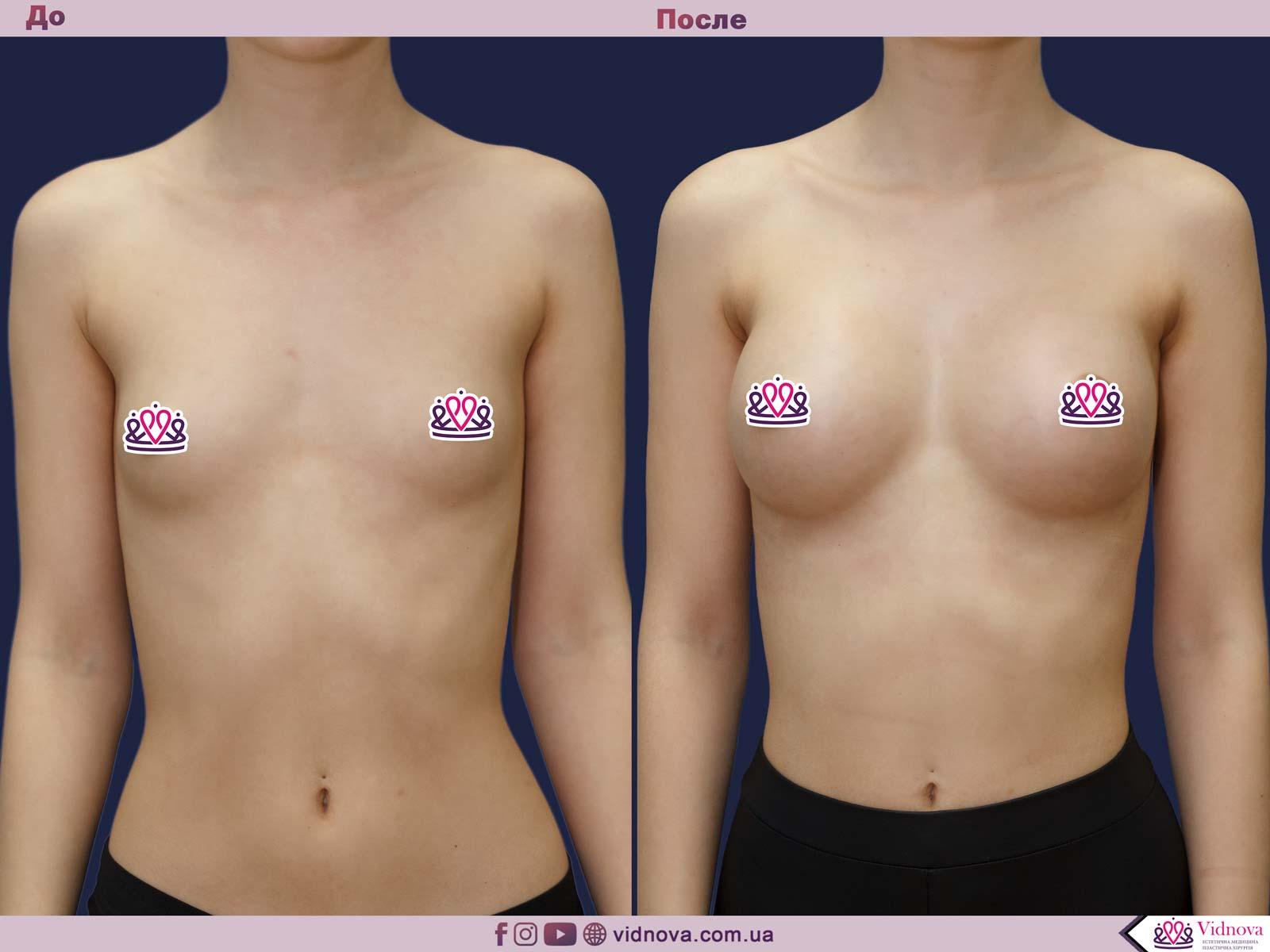 Пластика груди: результаты до и после - Пример №26-0 - Светлана Работенко