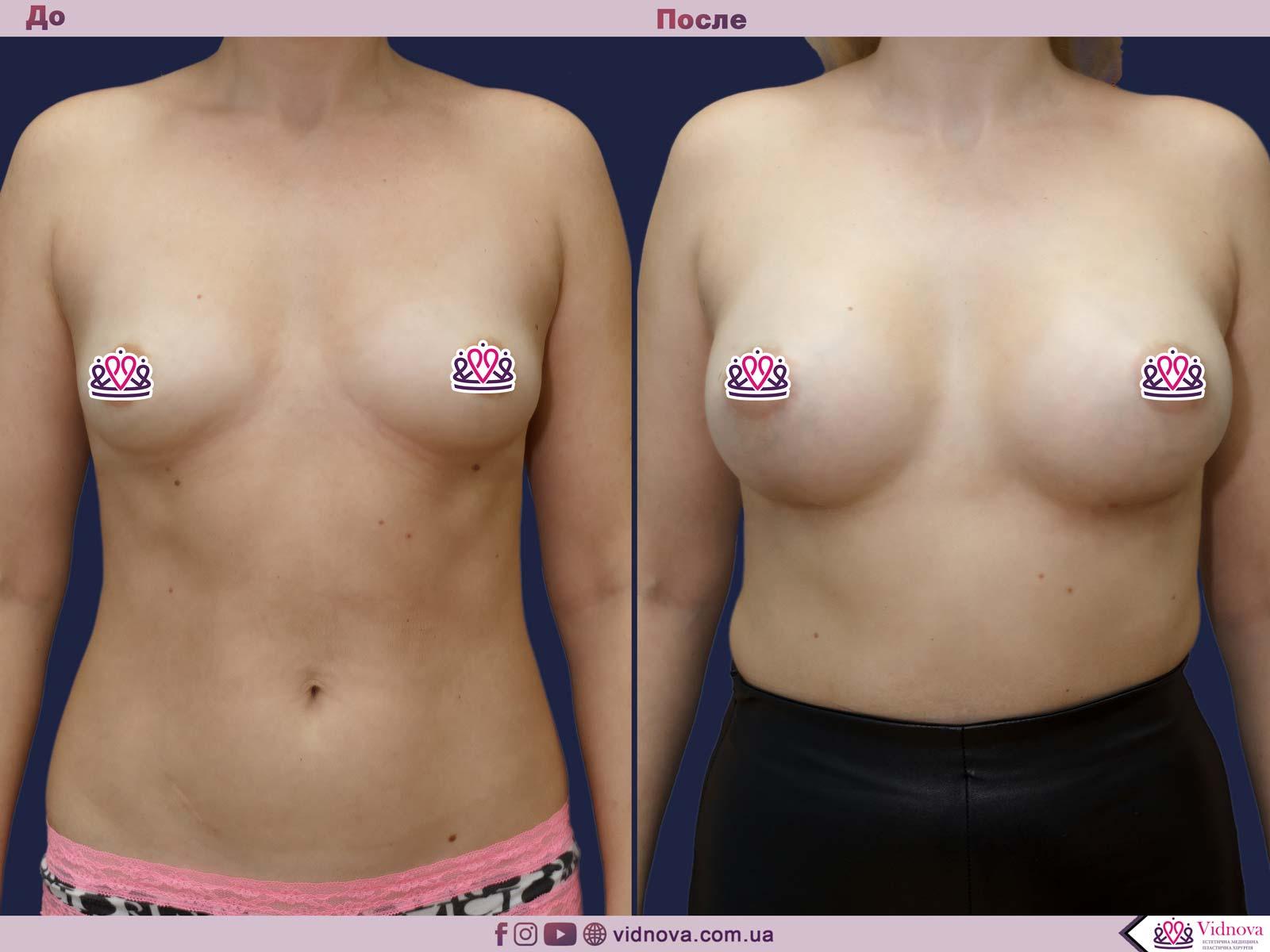 Пластика груди: результаты до и после - Пример №27-0 - Светлана Работенко