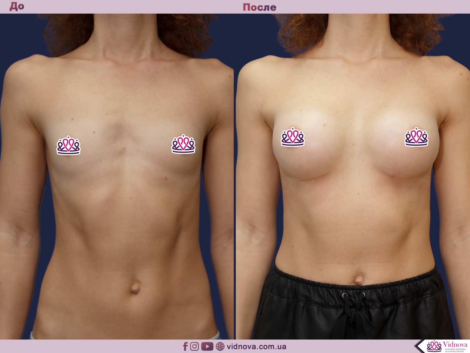 Пластика груди: результаты до и после - Пример №28-0 - Светлана Работенко