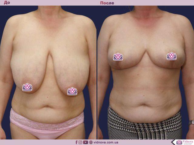 Уменьшение груди: примеры работ до-после