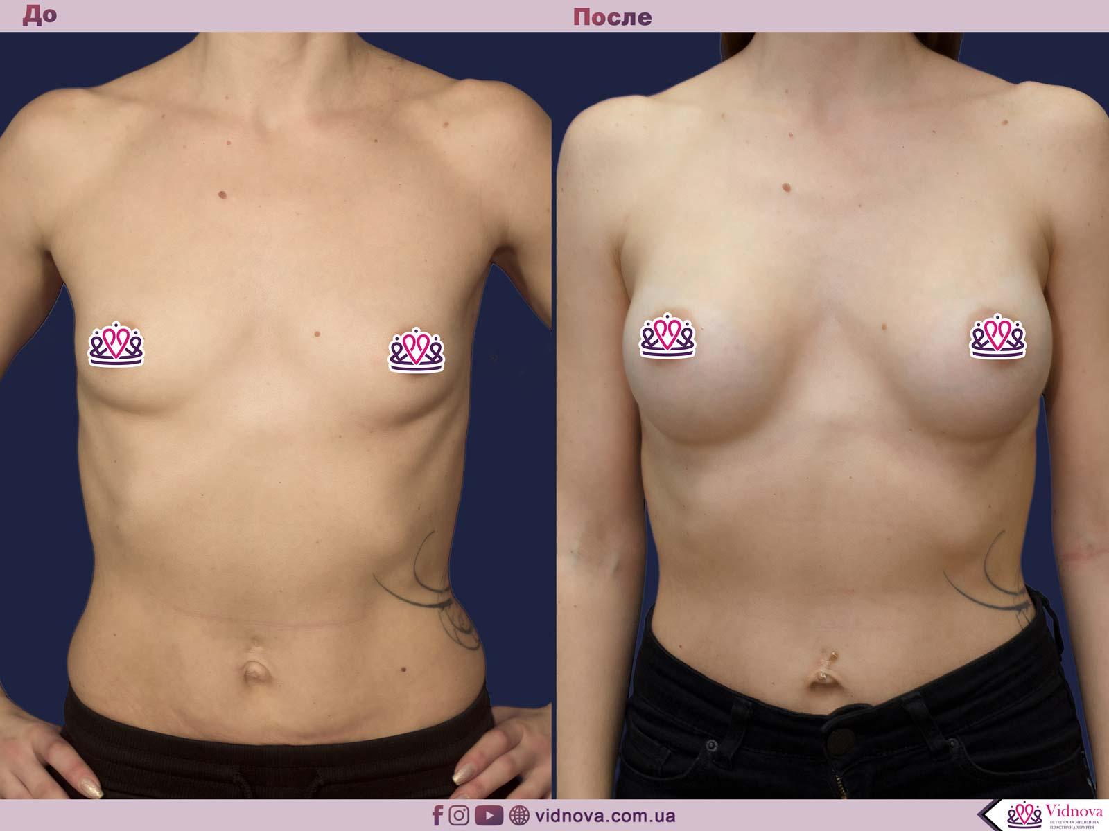 Пластика груди: результаты до и после - Пример №29-0 - Светлана Работенко
