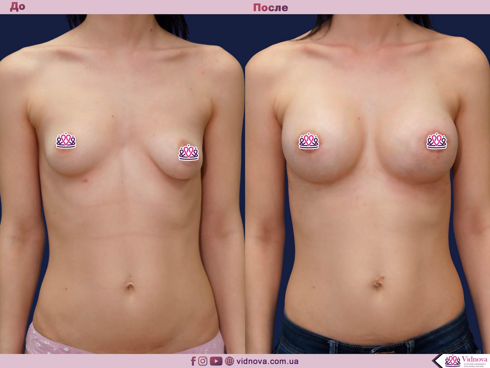 Пластика груди: результаты до и после - Пример №36-0 - Светлана Работенко