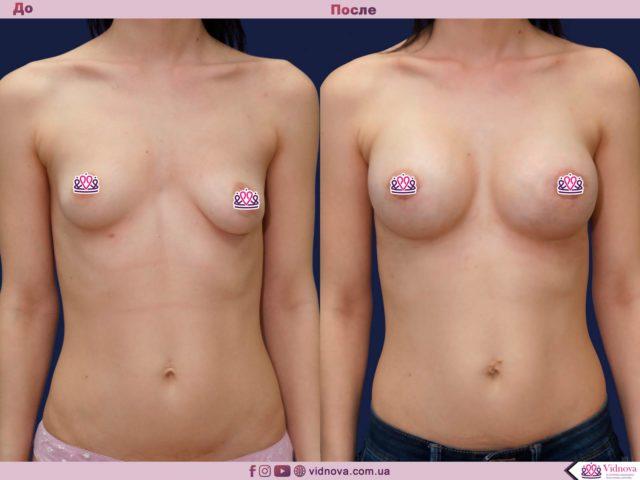 Подтяжка груди 1 35 640x480