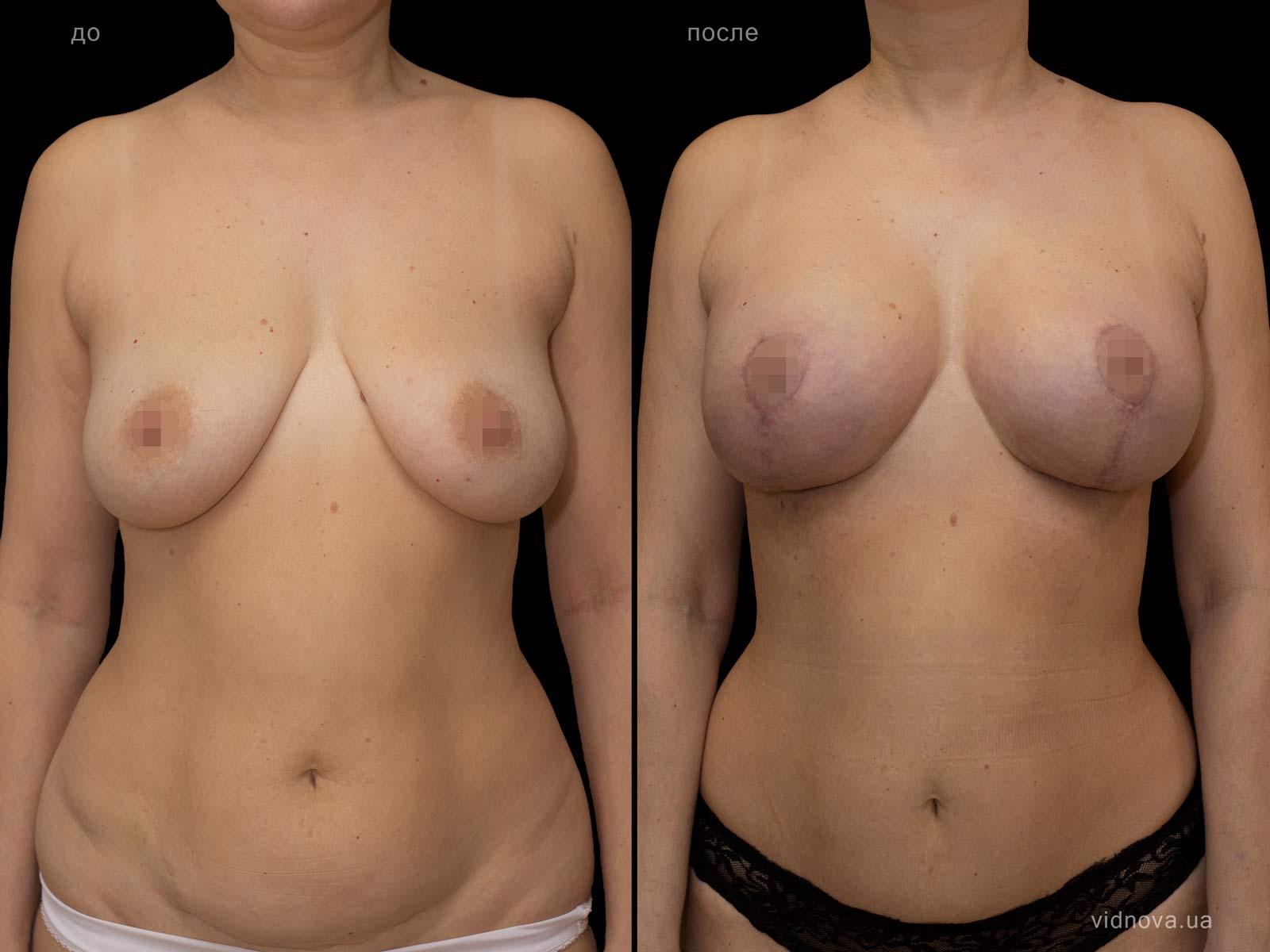 Пластика груди: результаты до и после - Пример №90-0 - Светлана Работенко