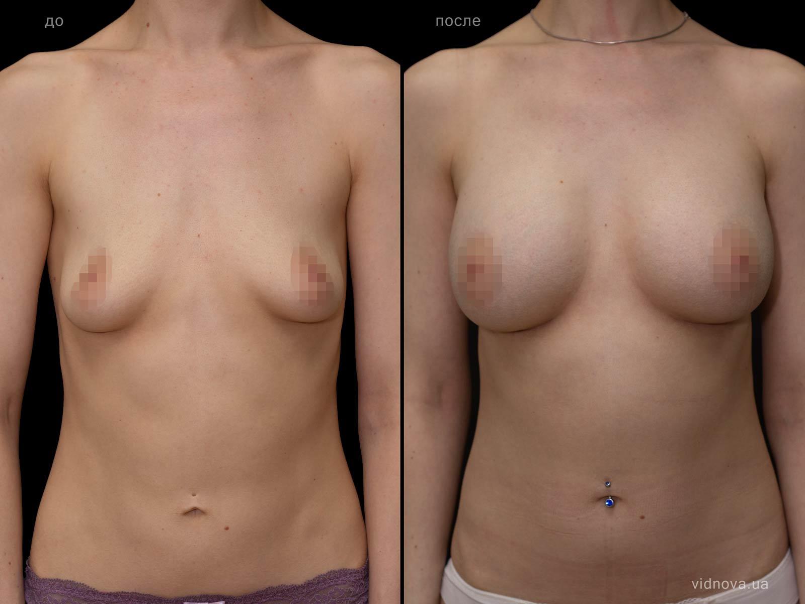 Пластика груди: результаты до и после - Пример №95-0 - Светлана Работенко