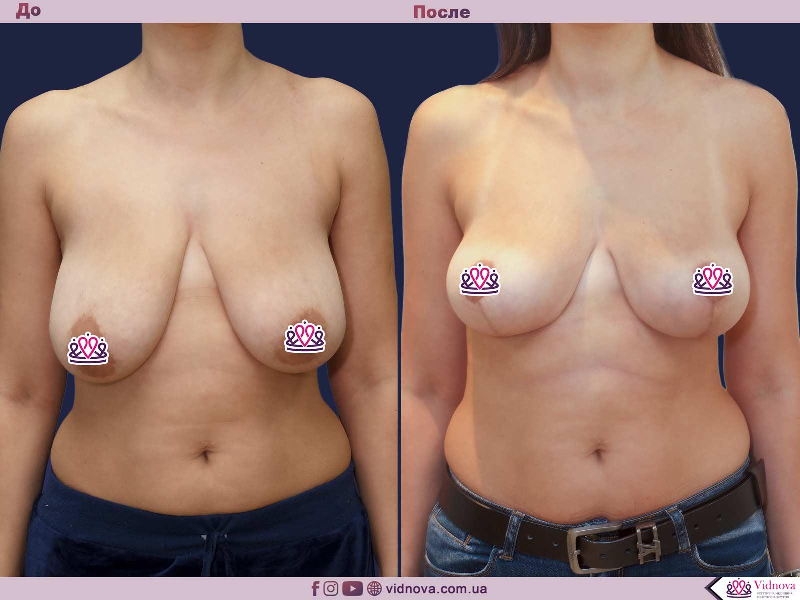Пластика груди: результаты до и после - Пример №31-0 - Светлана Работенко