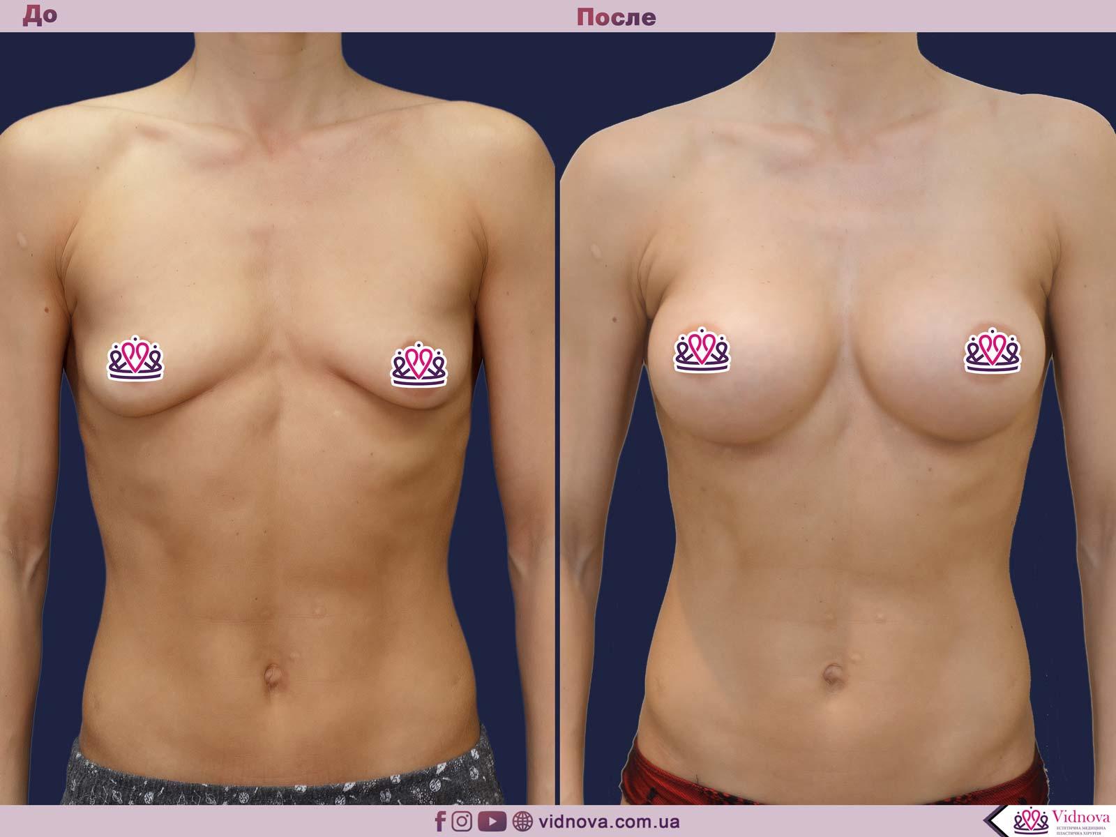 Пластика груди: результаты до и после - Пример №33-0 - Светлана Работенко