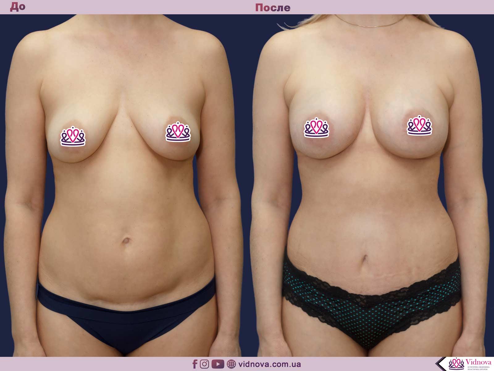 Пластика груди: результаты до и после - Пример №32-0 - Светлана Работенко